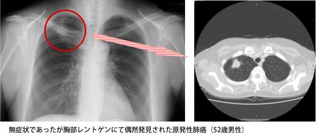 無症状であったが胸部レントゲンにて偶然発見された原発性肺癌
